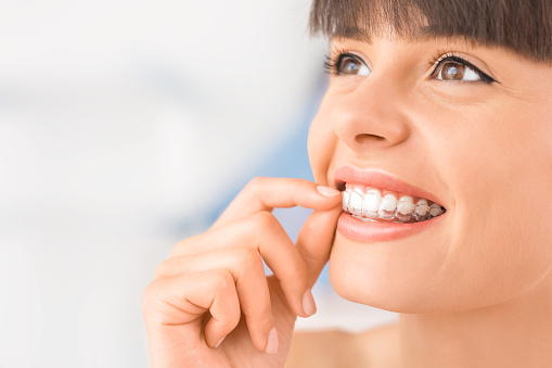Clear Invisalign aligners at Dr. Amy James and Associates Orthodontists